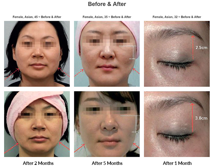 Skin Tightening - PLUSPLUS CLINIC